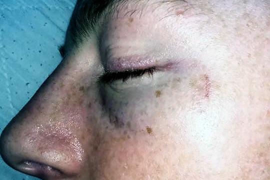 Nathan Booth - black eye