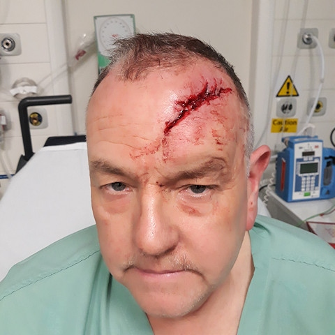 Paul Schofield was hit over the head with a baseball bat