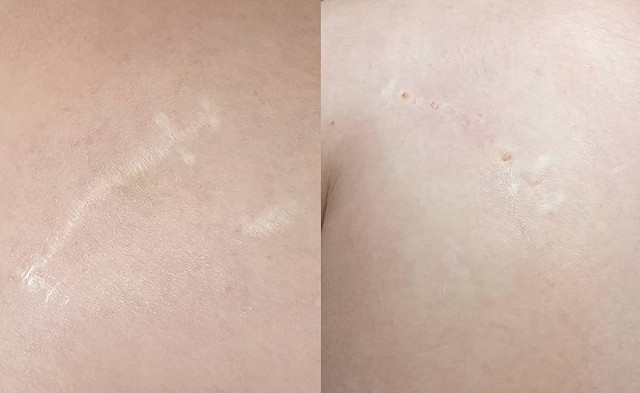 Before (left) and after (right) scar removal