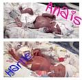 Anais and Harlie at birth