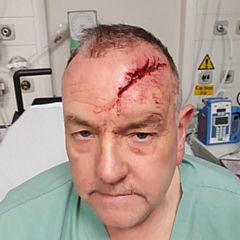 Paul Schofield was hit over the head with a baseball bat last year